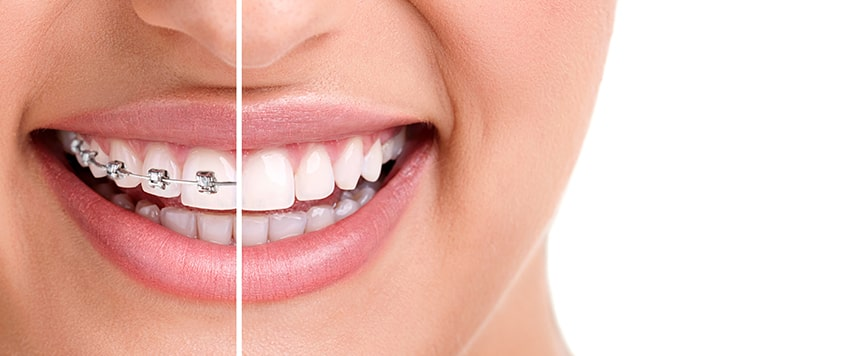 Healthy female smile showing half traditional metal orthodontics, the other half Invisalign clear braces