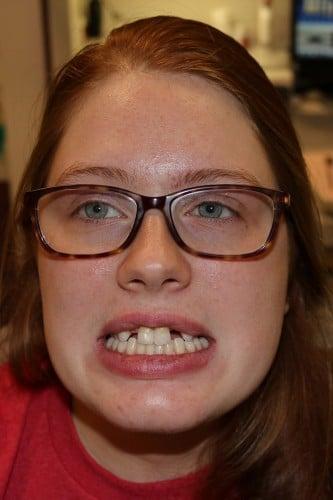 Alex's full face photo before dental implants.