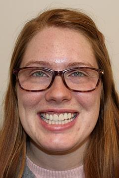 Alex after dental implants.