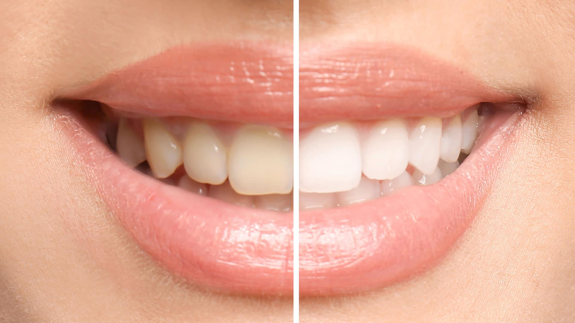 A smile showing the difference from teeth whitening