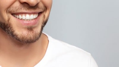 Male smile showing off the benefits of inlays