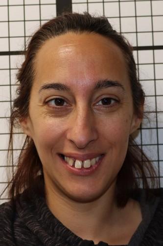 Kara before full face orthodontics.