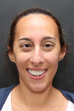 Kara after full face orthodontics.