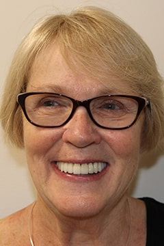 Maureen's full face photo after tmj treatment and smile makeover.