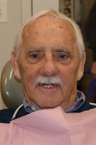 Richard before new you dentures.