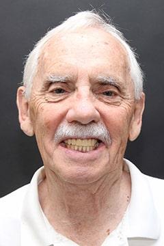 Richard after new you dentures.