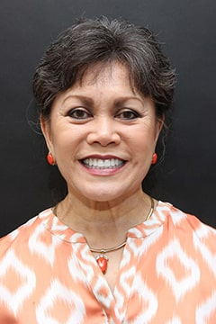 Thelma's full face photo after full mouth reconstruction.