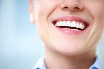 A smiling woman with porcelain veneers.